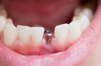 Zahnarzt Ansbach Dr. Bitter Zahnarztpraxis Implantologie