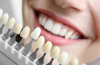 Zahnarzt Ansbach Dr. Bitter Zahnarztpraxis Zahnersatz