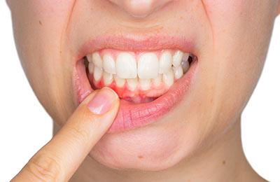 Zahnarzt Ansbach Dr. Bitter Zahnarztpraxis Zahnfleischbehandlung